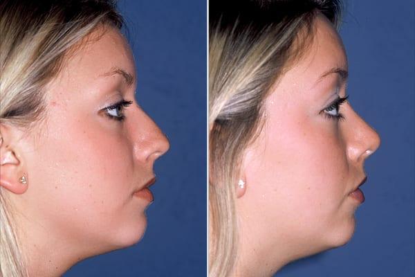 Rinoplastia, procedura prin care se pot corecta problemele  de respiratie,  dar si partea care tine de estetica nasului