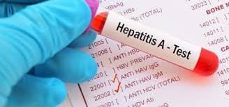 55 de cazuri de hepatită acută virală tip A, înregistrate în Alba în primul semestru din 2019