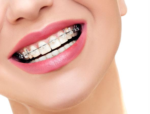 3 Motive pentru care sa apelezi la un aparat  dentar atunci cand situatia o impune
