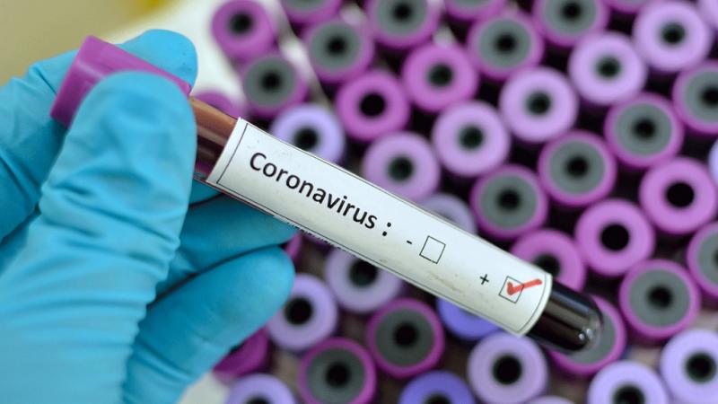 3.613 de cazuri de persoane infectate cu virusul COVID – 19 și 141 de morți în România!